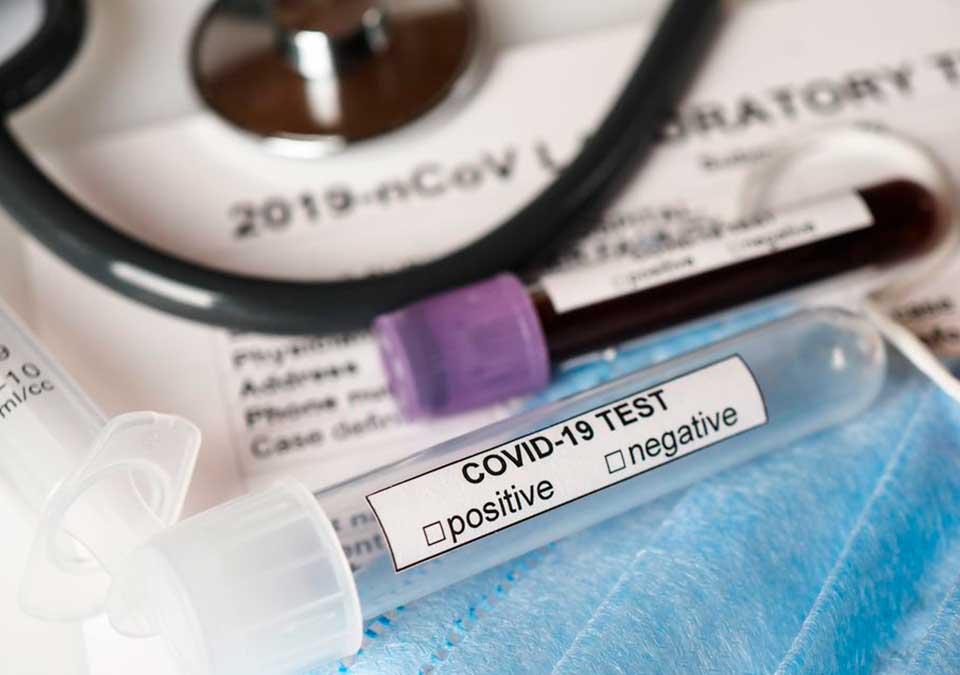 A Giromèdic Realitzem test ràpids d'antígens SARS COV-2 , truca i informa't.